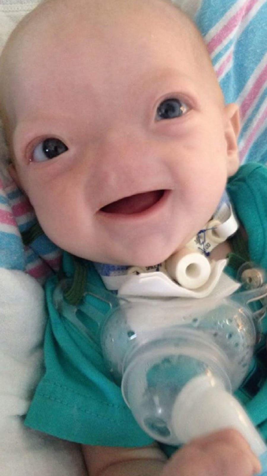 生まれ付きで鼻のない赤ちゃんだったイーライ・トンプソンが殘した笑顔