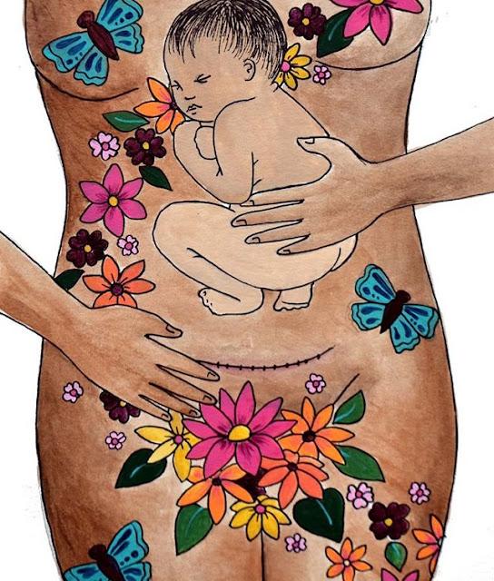 cesárea, aderências, coragem, maternidade, sororidade, empoderamento