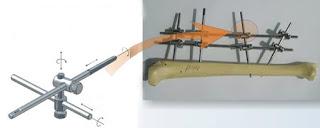 Tiene pocos elementos y permite total movilidad durante el armado