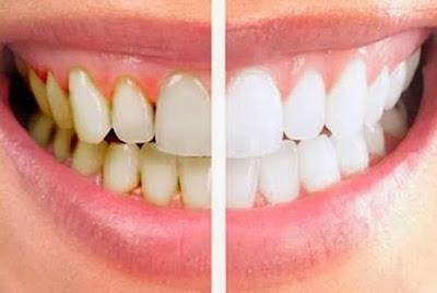 Bahan Alami Yang Bisa Bikin Gigi Putih Bersih