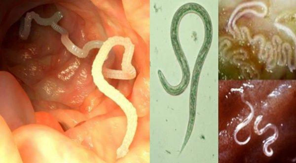 8 Herbs That Naturally Kill Internal Parasites
