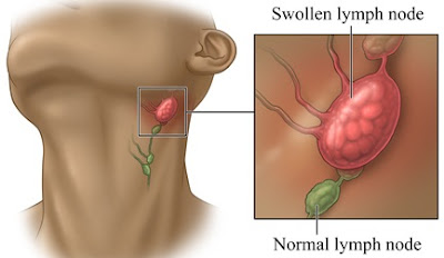 Swollen Lymph Nodes : Causes And Treatments