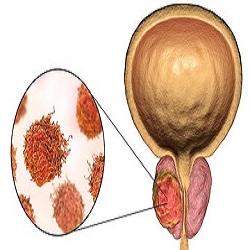 Nova droga atrasa propagação de câncer de próstata