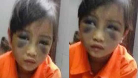Akibat Salah Eja, Cikgu Pukul Anak Murid Sampai Lebam
