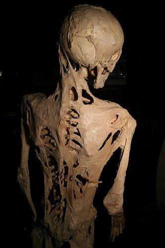 myositis ossificans progressiva, myositis ossificans,
