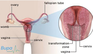 Gambar Obat Kanker Servik Bukalapak