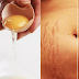 Home Remedies To Remove Stretch Marks Naturally Using Egg Whites and Potato Juice