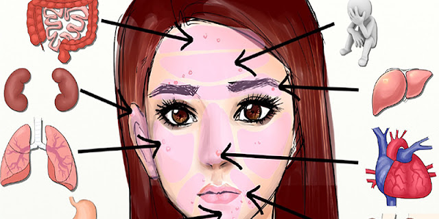What Is Your Acne Trying To Tell You?