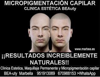 Micropigmentación capilar Málaga CLINICA ESTÉTICA MARBELLA  - uno de los centros más reconocidos, prestigiosos y especializados de España en Marbella