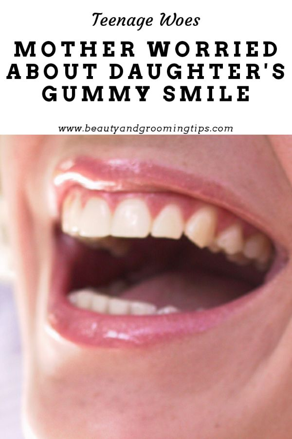 girl's gums are prominently visible when she smiles