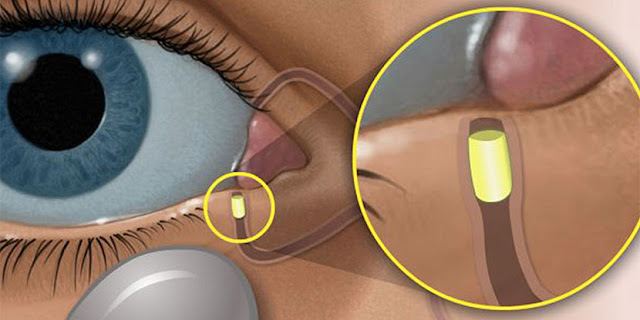 Resorbable intracanalicular steroid insert approved for postoperative pain