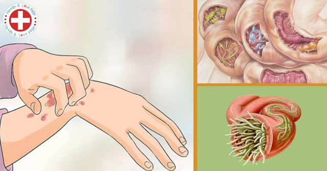19 Signs Parasites are Residing In Your Body – These Herbs Can Help Destroy Them