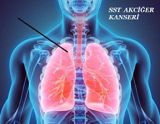 SST Kanseri Teşhisi Nasıl Konuyor?