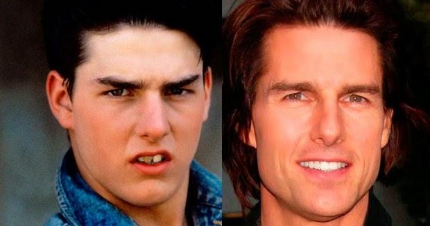 Tom Cruise : ses dents étaient pourries - Avant et après ...  Tom