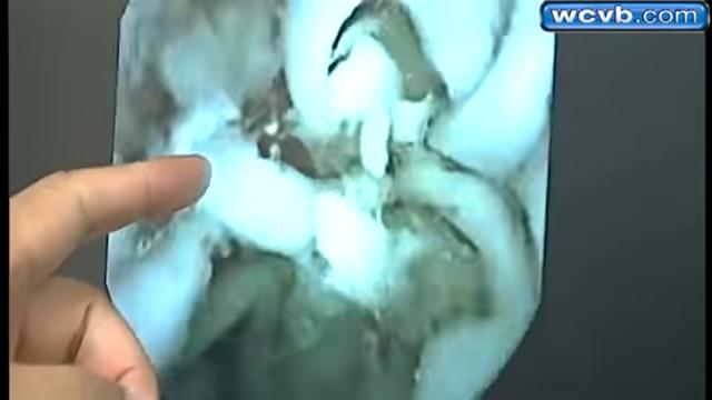 Video Kondisi Perut Setelah Makan Mie Instant