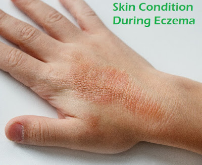 Skin Condition During Eczema