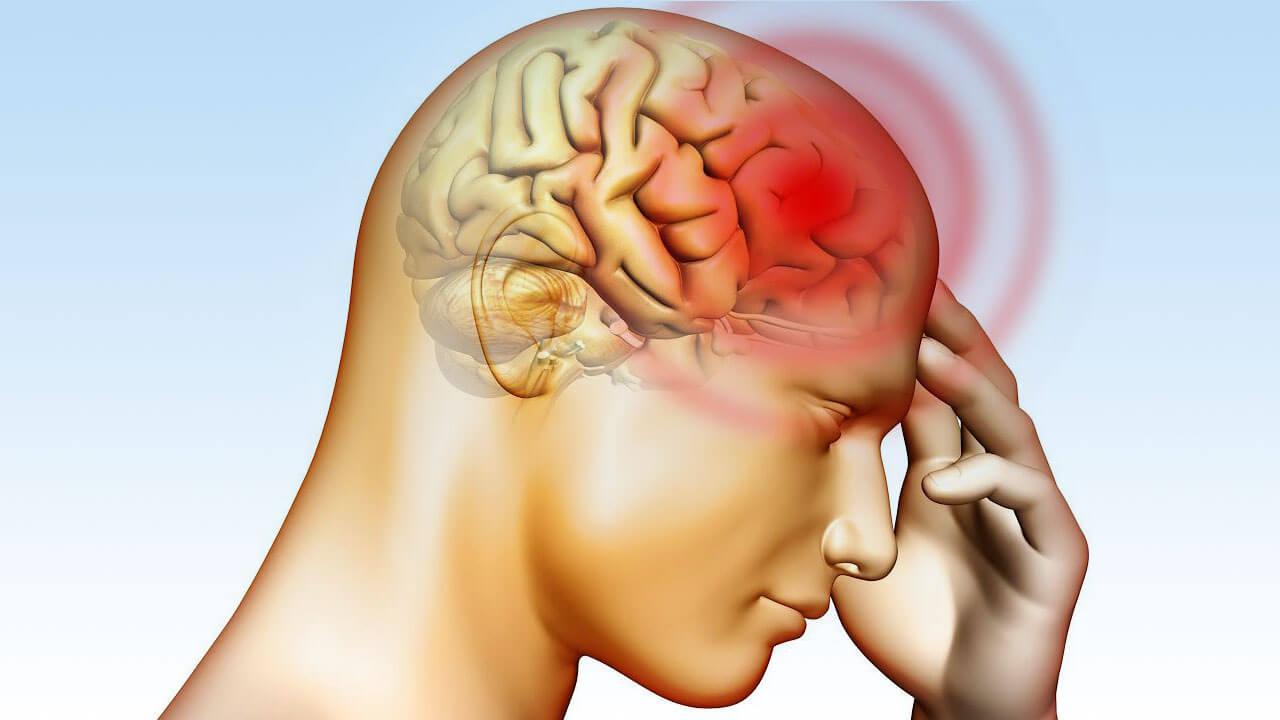 Beyin kanaması ile 5 gün dolaştı