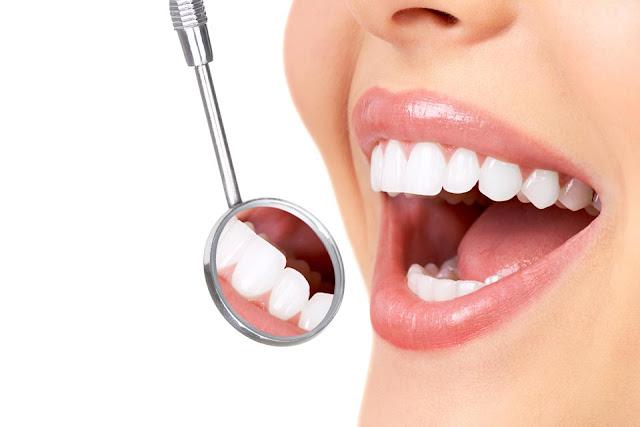 Cara Alami Memutihkan Gigi Tanpa Obat