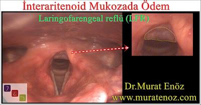 laringofarengeal reflü - ekstraözofageal reflü - sessiz reflü - boğaz reflüsü - interaritenoid ödem