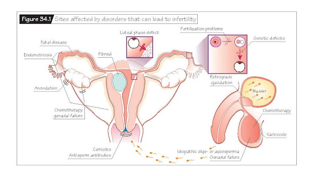 Infertility, Oocyte abnormalities, Female anatomic abnormalities, Implantation abnormalities, Evaluation and treatment of infertility,