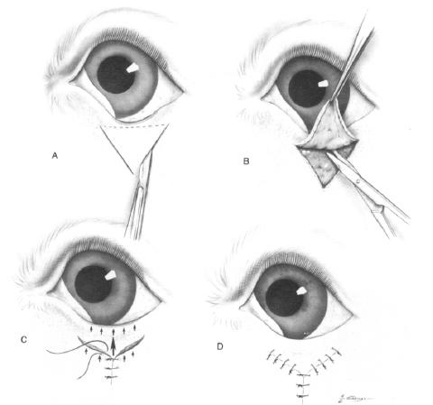 Teknik Operasi Entropion Dan Ectropion pada Hewan (Bedah Mata)