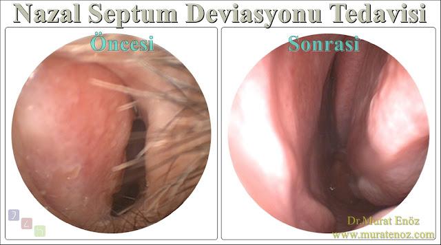 Nazal septum deviasyonu tedavisi - Deviasyon ameliyatı- Septoplasti ameliyatı