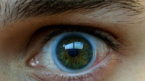 Keratoconus: Seeing the World Through My Eyes