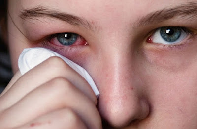 Penyebab Mata Merah dan Gatal serta Cara Mengatasinya