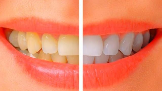 Banyak cara memutihkan gigi. Namun cara berikut ini paling alami, efektif, aman dan tak ada efek samping bagi kesehatan.