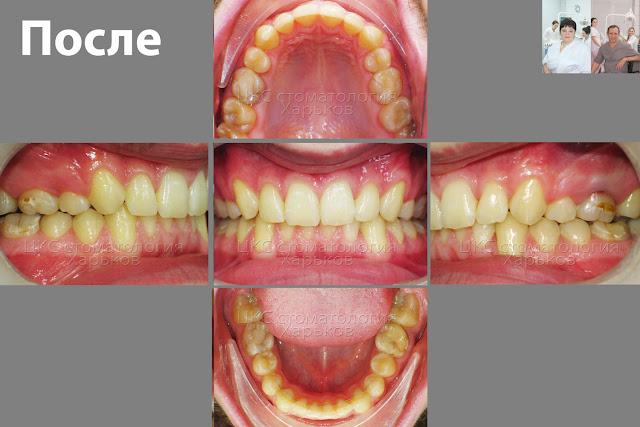 Результат ортодонтического лечения