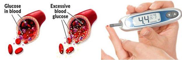 Cara Menyembuhkan Diabetes Dengan Cepat