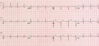 Gambar Jumlah Detak Jantung Normal Gambar Rekam di Rebanas
