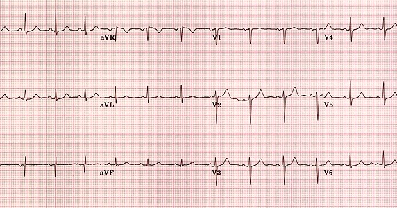 Cara Menentukan Axis Jantung Sumbu Jantung Pada EKG