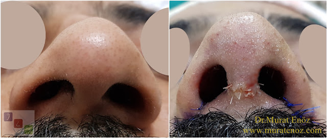 Twisted nose - Crooked nose surgery - Scoliotic nose - Crooked nose - Treatment of twisted nose  -Treatment of crooked nose - Challenges in treatment of deviated nose - Crooked nose aesthetic surgery in Istanbul - Twisted nose treatment in Istanbul