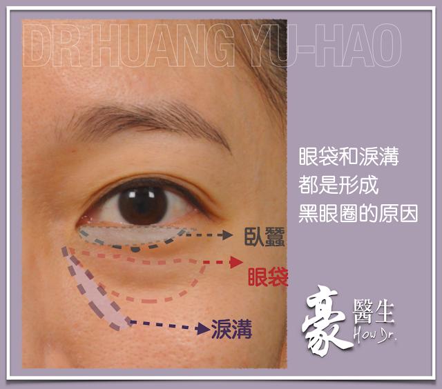 眼袋和淚溝都是形成黑眼圈的原因-高雄眼袋權威