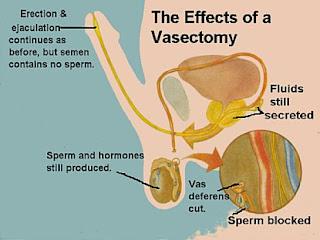 fertil-tras-vasectomia