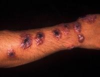 10 Macam Penyakit Kulit Paling Aneh dan ngeri Didunia