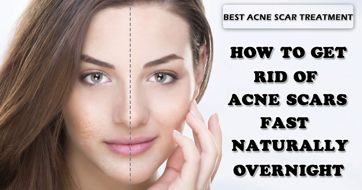 How To Make Remove Acne Scars Naturally