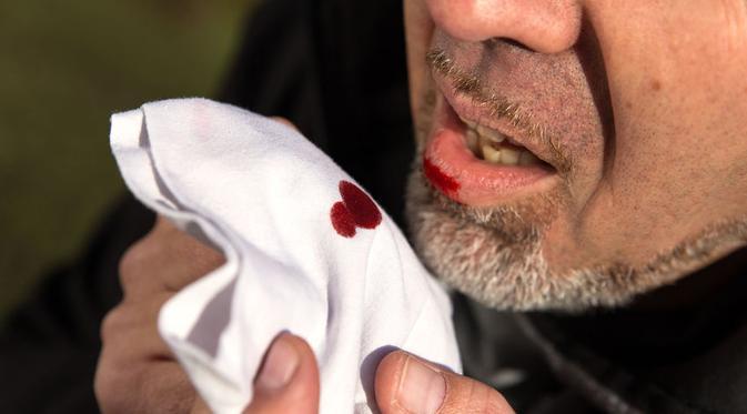Penyebab Batuk Berdarah dan Cara Mengobatinya - APA KATA ...