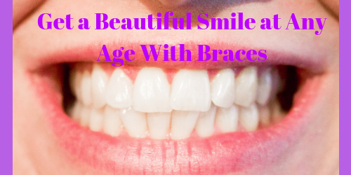 Get a Beautiful Smile at Any Age With Braces