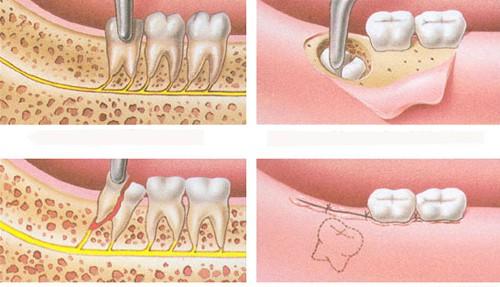 Nhổ răng khôn hàm dưới có nguy hiểm không