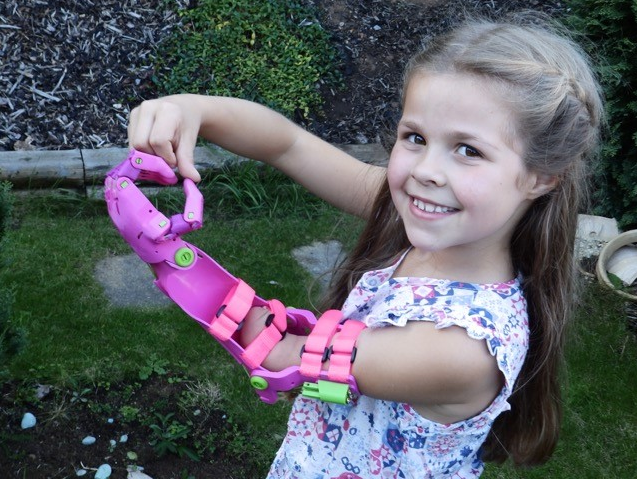 Inventor Makes 'Cool' Prosthetic Limbs For Kids In His Garden Shed For Free !!