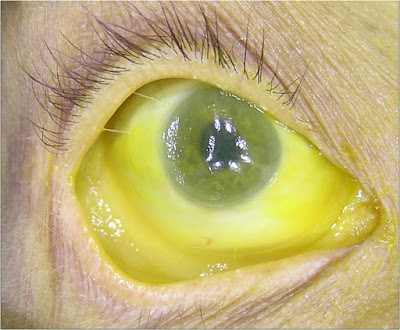 What is Scleral Icterus - Definiton, Symptoms, Causes, Treatment