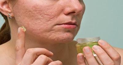 Receta 100% Natural  para deshacerse de las cicatrices del acné