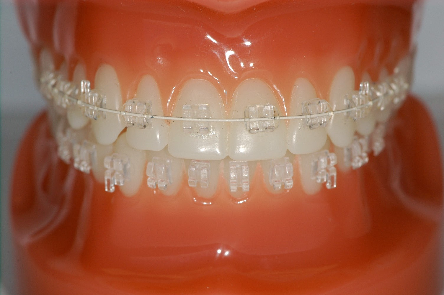 Affordable Dental Care India Teeth Alignment With Ceramic