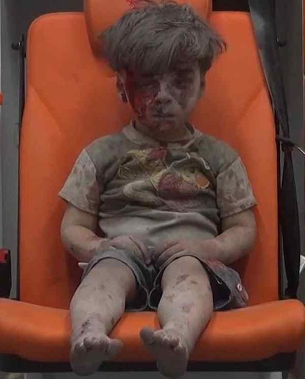 Niños heridos en  guerra de Siria se convierten en símbolo de horror