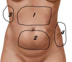grasa localizada en abdomen