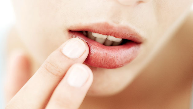 Cara Tepat Atasi Bibir Hitam