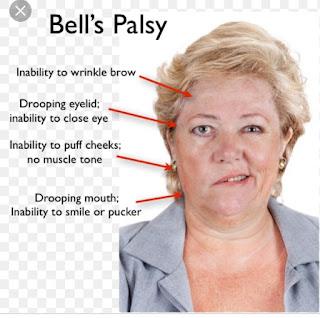 Bell-palsy-lumpuh-sebelah-muka