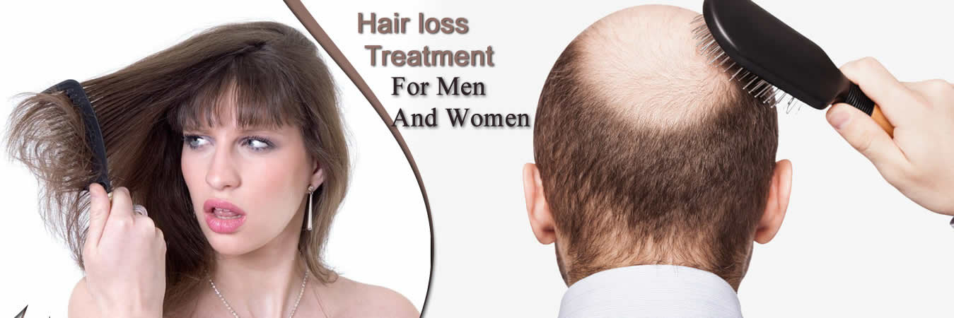 Do You Know The Best Natural Way of Hair Fall Treatment 2018